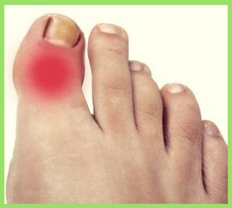 Поражение сустава большого пальца ноги лфк суставов видео