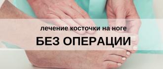 Лечение косточки на ногах без операции