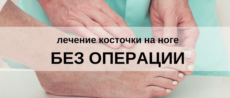 Убрать косточку на ноге без операции: лечение шишек