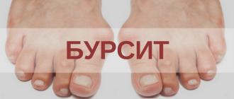 Что делать если воспалилась косточка на ноге у большого пальца