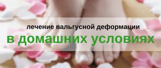 Лечение косточки на ноге в домашних условиях