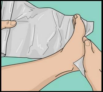 применение фольги при косточке на ноге