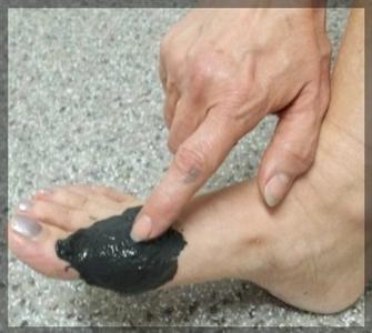 Лечение косточек на ногах в домашних условиях убрать шишку дома