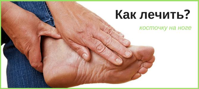 Методы лечения косточки на ноге