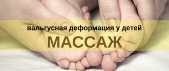 массаж при лечении вальгуса у детей