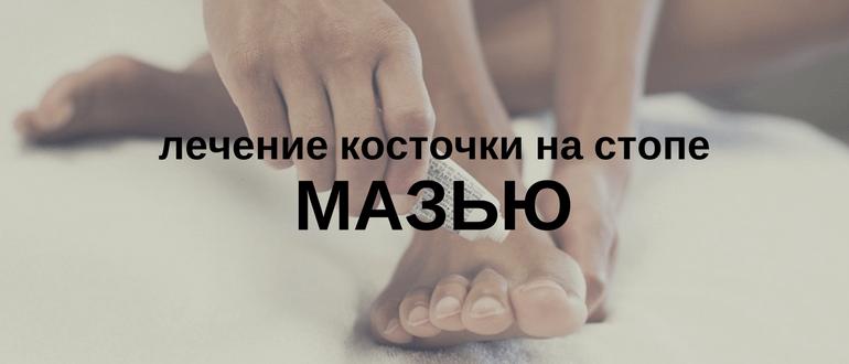 Лечение косточки на ноге мазями