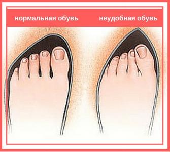 Удобная обувь при вальгусной деформации