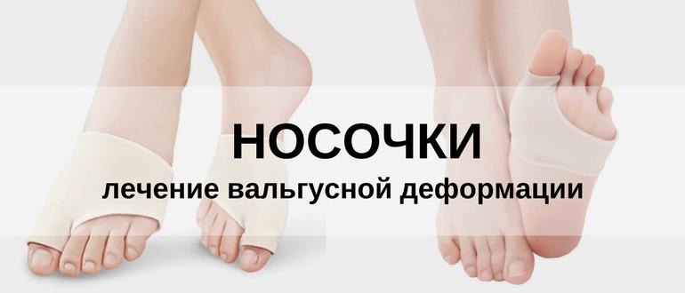 Носочки при вальгусной деформации