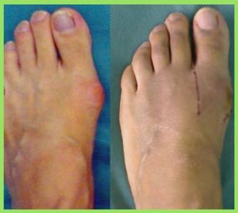 Минусы операции косточки на ноге