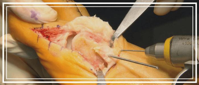 Хирургическое лечение халюс вальгус