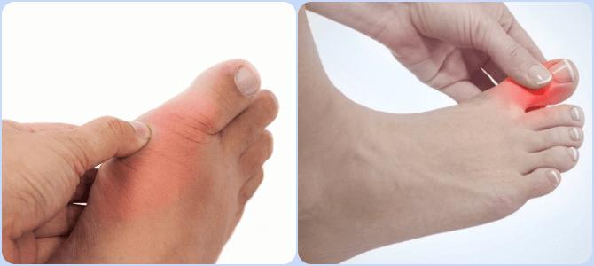 Косточка на большом пальце ноги причины появления и терапия в домашних условиях