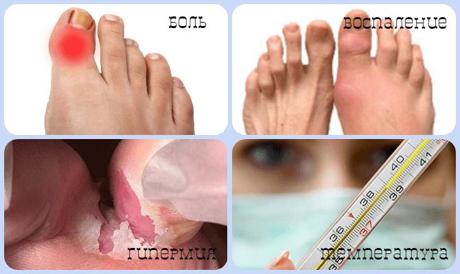 симптомы бурсита на большом пальце стопы