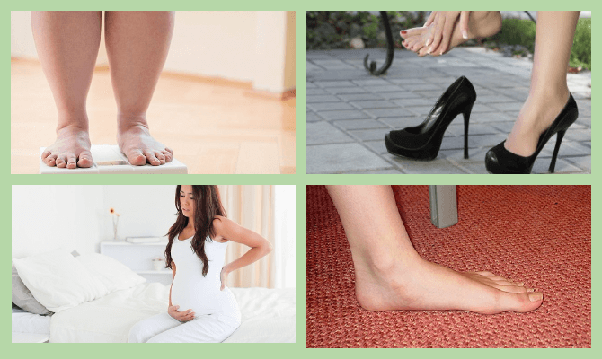 Причины появления косточки на стопе