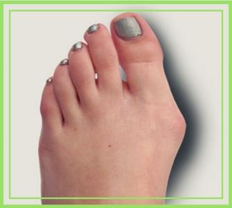 Народные средства лечения от мясоеда сустава большого пальца ноги влияние спайса на суставы