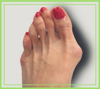Третья стадия косточки на ноге