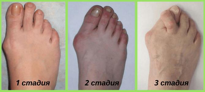 Как снять боль с сустава большого пальца на ноге можно ли делать прививки при дисплазии тазобедренных суставов