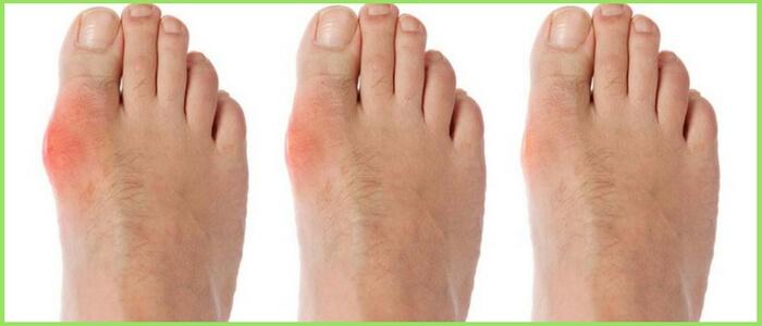 стадии косточки на ноге