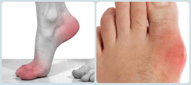 симптомы артрита большого пальца ноги