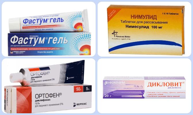 медикаменты для лечения артроза