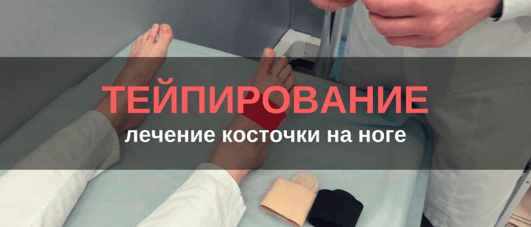 Лечение косточки на ноге тейпированием