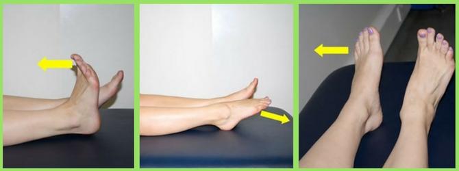 виды упражнений при косточке на ноге