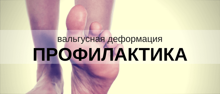 Причина появления косточки на большом пальце ноги
