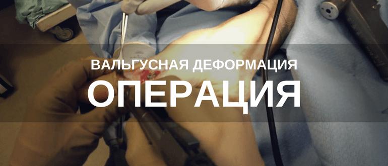 Операция при вальгусной деформации