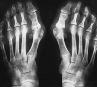 Причины развития косточки на стопе
