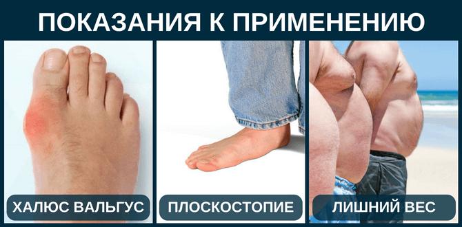 Ночная ортопедическая шина от косточки на ноге купить отзывы