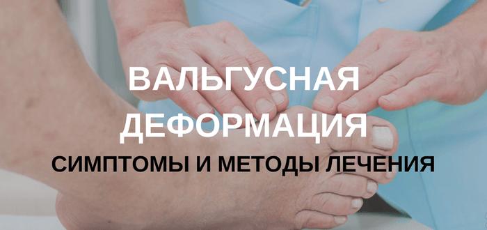 Причины симптомы и лечение вальгусной деформации большого пальца стопы