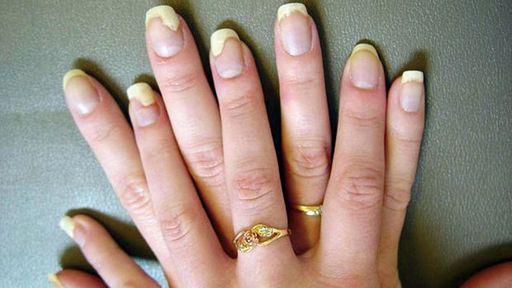 Чем лучше лечить грибок ногтей