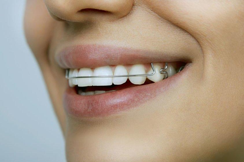 Здоровые зубы и красивая улыбка - как работают ортодонтические аппараты