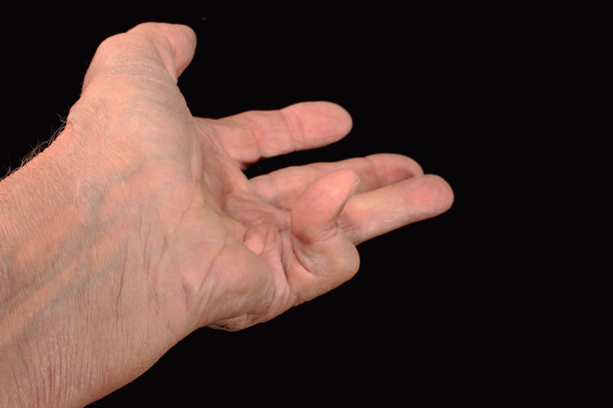 Симптомы и признаки контрактуры Дюпюитрена